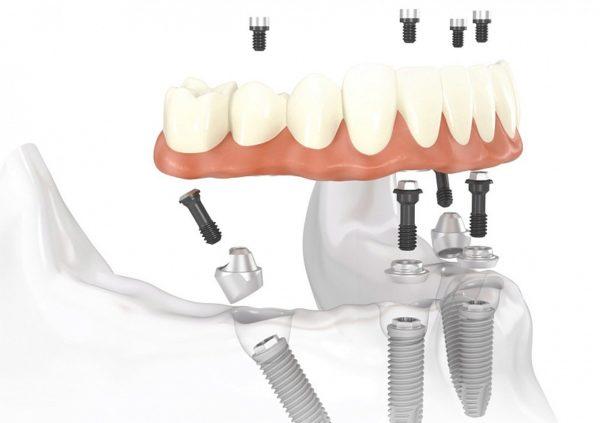 Как восстановить зубы: клиника «Зууб» практикует имплантацию «All-on-4»