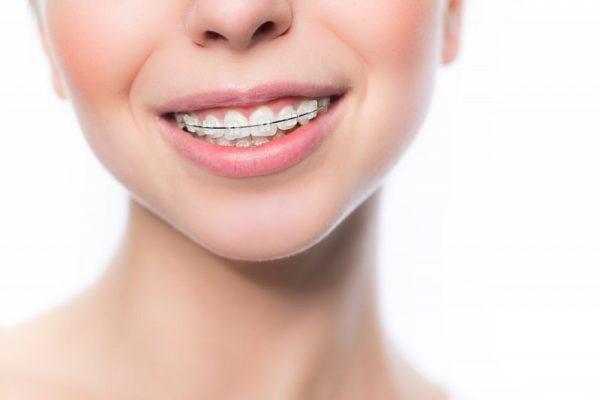 Установку сапфировых брекетов за 35 000 рублей проводит стоматологический центр «Зууб»